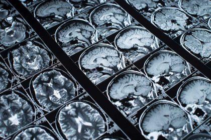 MRI brain scan images