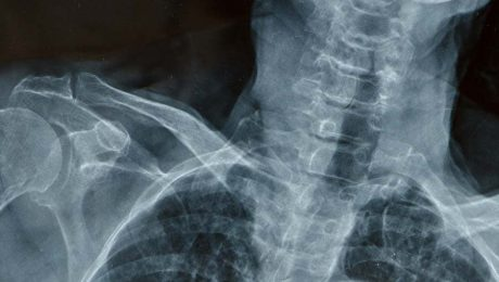 X Ray of someones neck. On the inside, we're all the same.